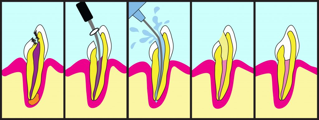 Root canal treatment graphics in five steps