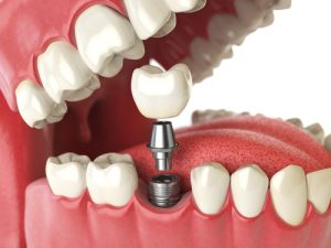 virtual model of a dental implant being placed